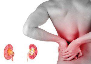 Kidney Pain Kidneypedia