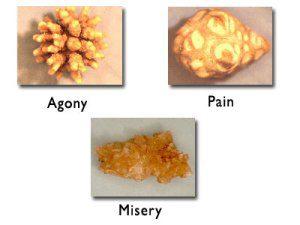 Passing A Kidney Stone Kidneypedia